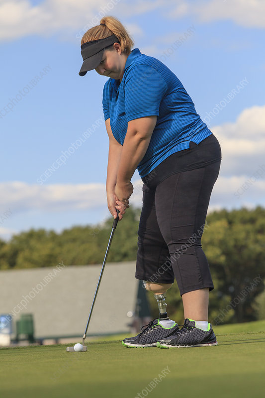 Woman with prosthetic leg playing golf