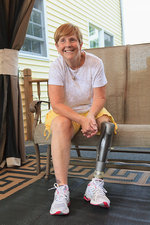 Woman with a prosthetic leg sitting