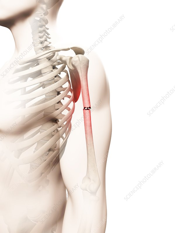 Broken upper arm bone, Illustration