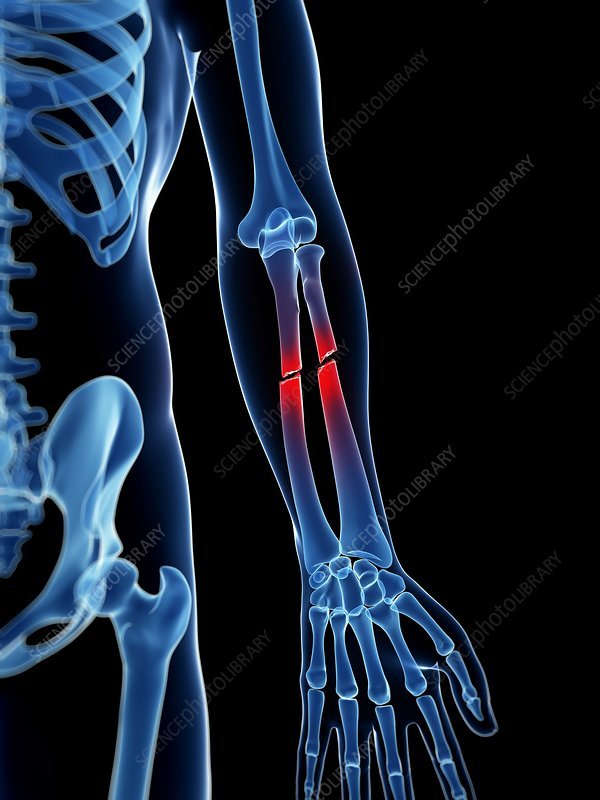 Crushed Human Bone : Broken lower arm bones illustration stock image f