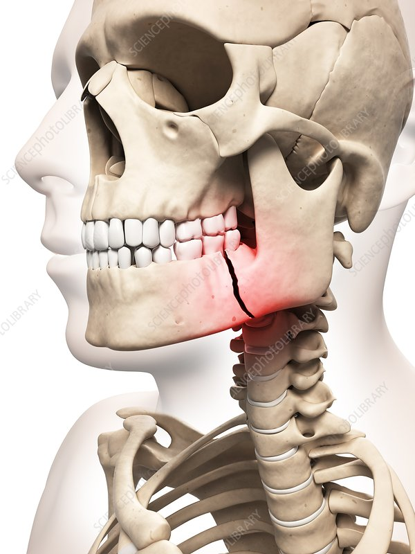 Broken jaw bone, Illustration