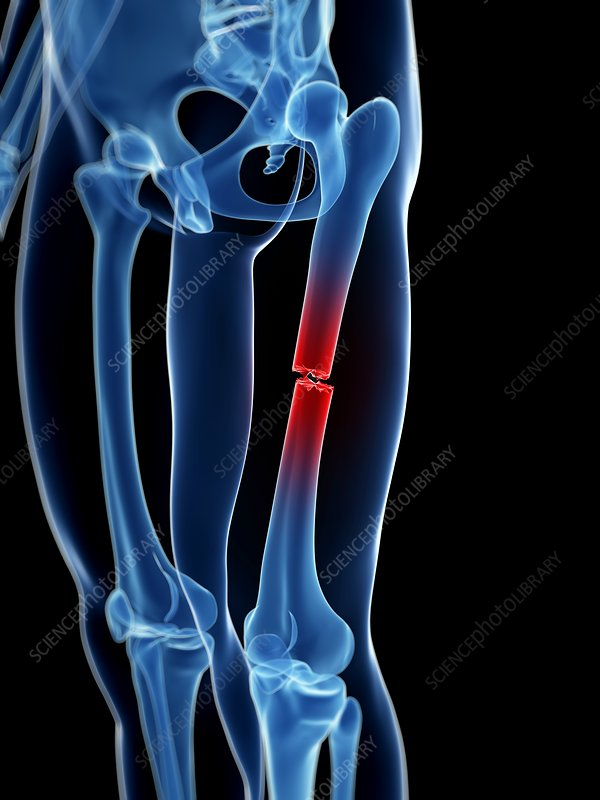 Broken upper leg bone, Illustration