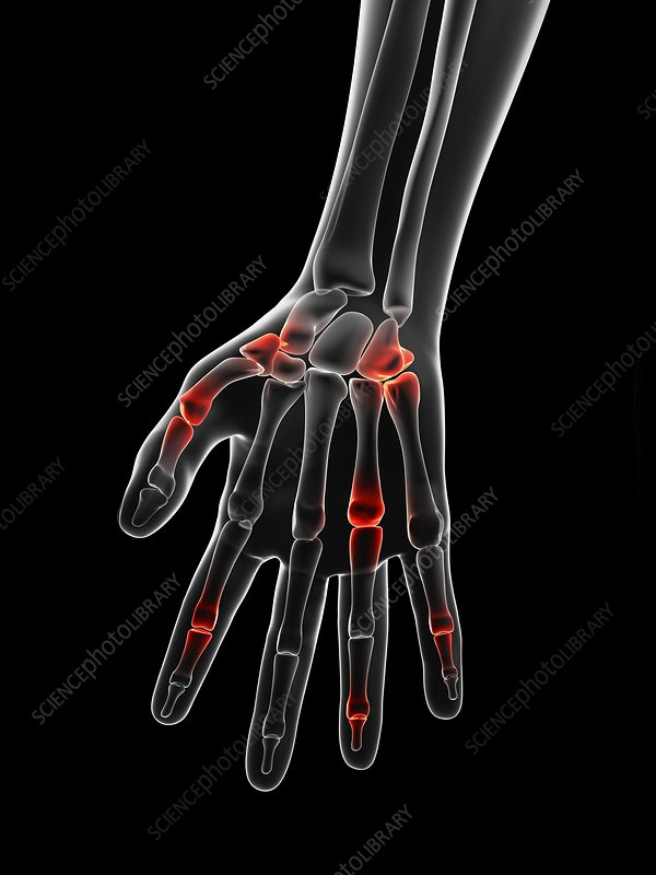 Human finger joint pain, Illustration