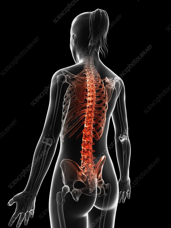 Human spine pain, Illustration