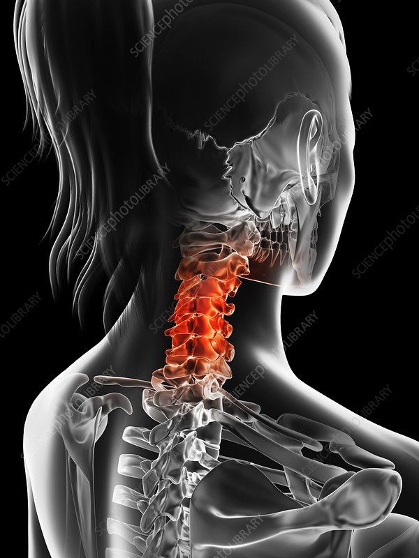 Human cervical spine pain, Illustration