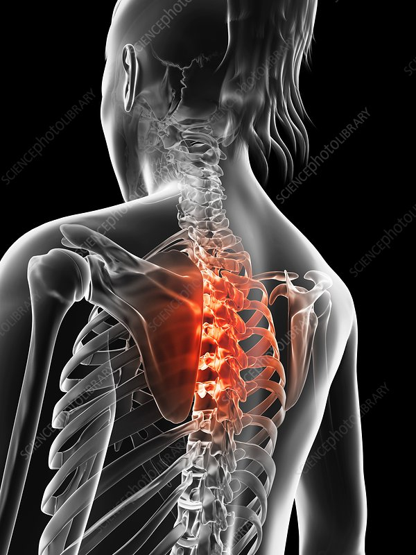 Human thoracic spine pain, Illustration