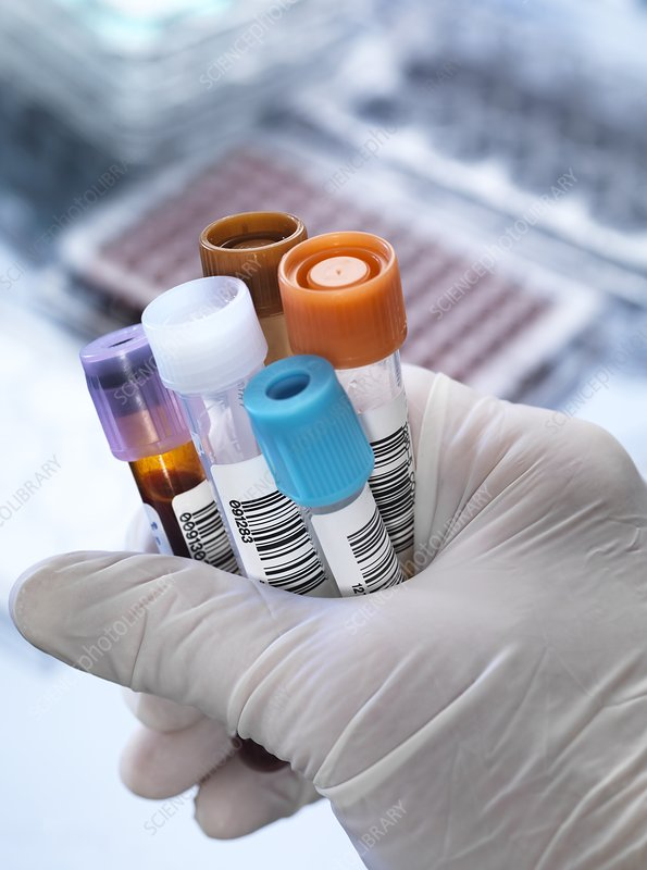 Blood and other samples for testing