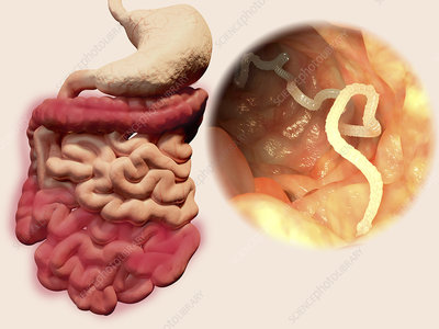 Human tapeworm infection, illustration