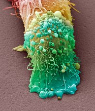 Skin cancer cell, SEM