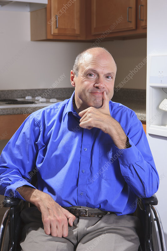 Man with deformed hands in his wheelchair
