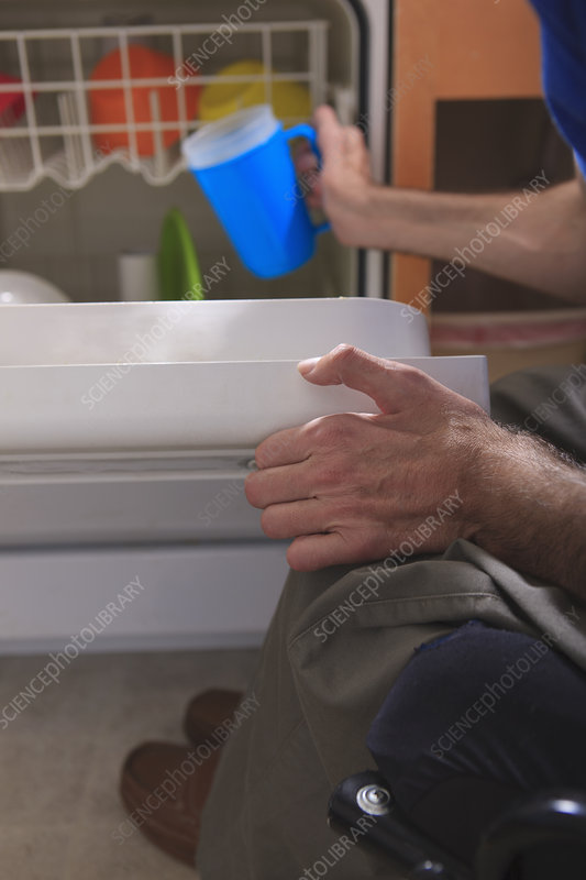 Man with deformed hands in the kitchen