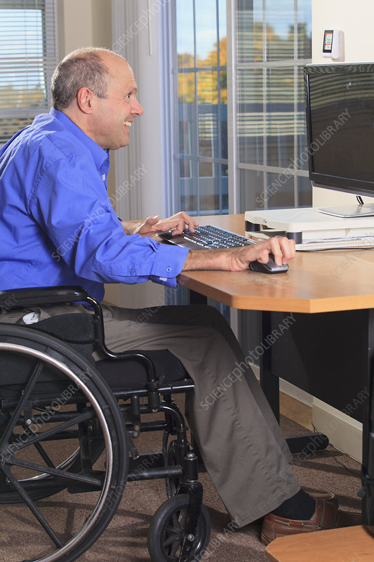 Man with deformed hands using a computer
