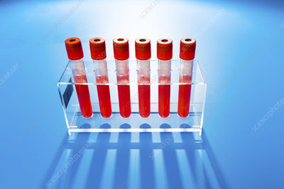 Blood samples in tubes
