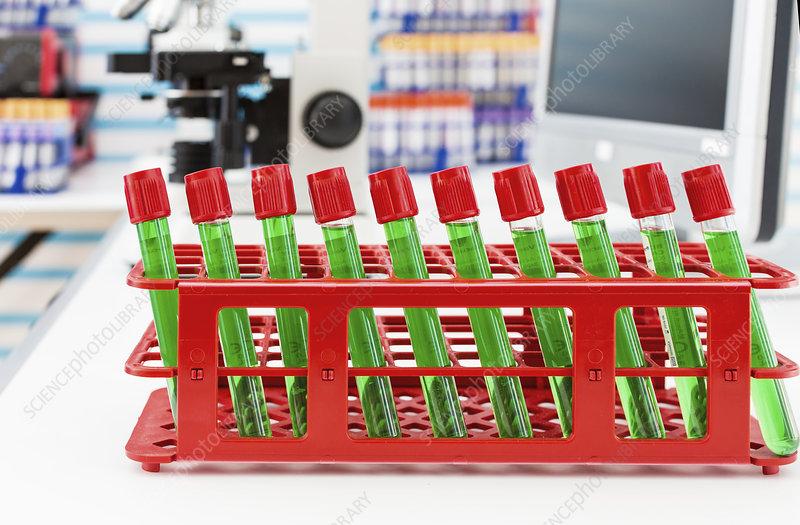 Samples in test tubes