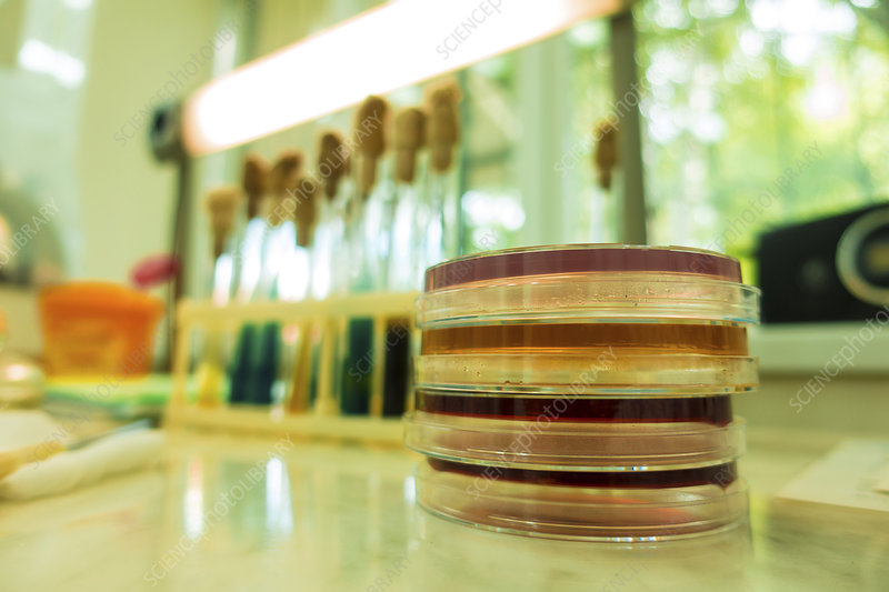 Petri dishes in lab