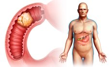 Cancer, small intestine, illustration