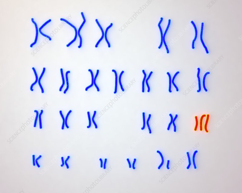 Edward's syndrome karyotype, illustration