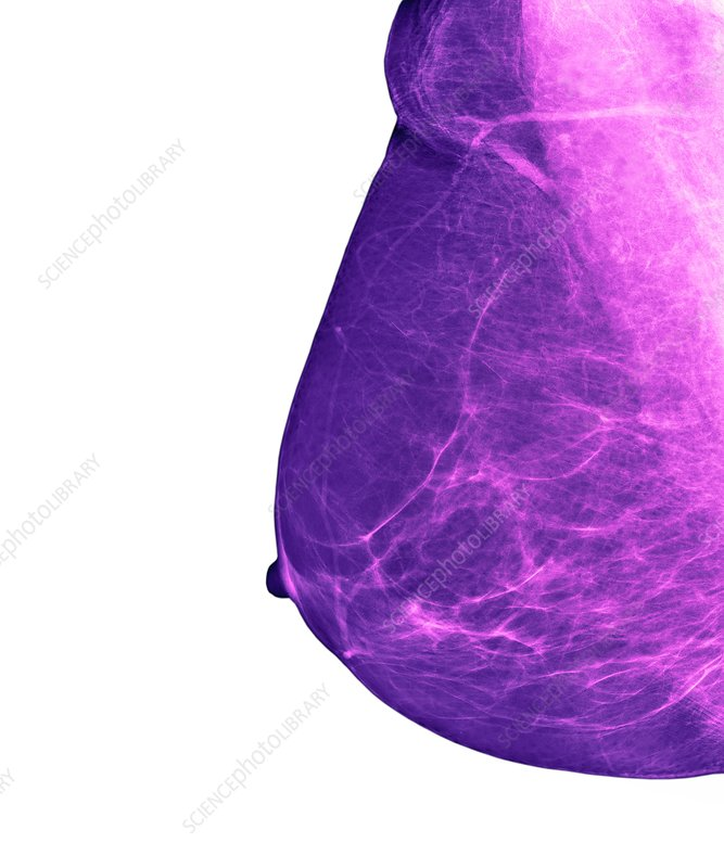 Breast cancer screening, X-ray