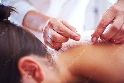 Acupuncturist applying acupuncture needle