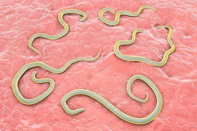 Dog roundworm, illustration