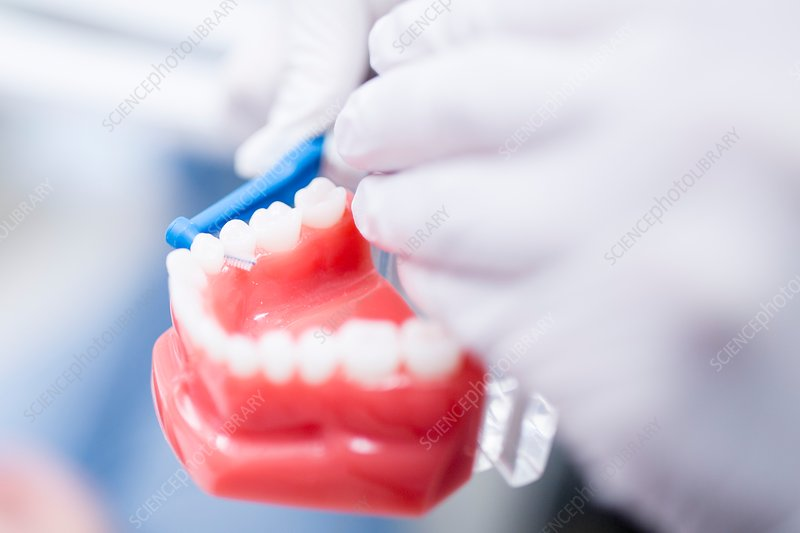 Dentist demonstrating cleaning