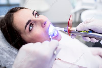 Dentist using ultraviolet light