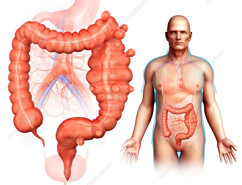 Diverticulosis, illustration