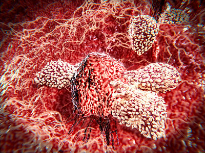 T-lymphocytes attacking a cancer cell