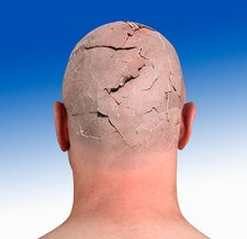 Person with cracked head, illustration