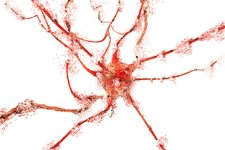 Apoptosis of a neuron, illustration