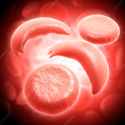 Red blood cells in sickle cell anaemia