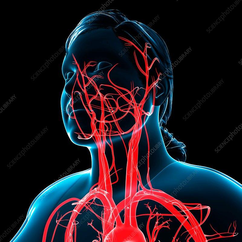 Head and neck arteries, illustration