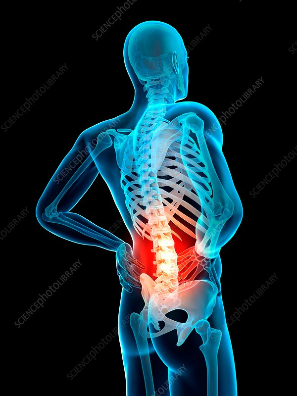 Human spine and back pain, illustration