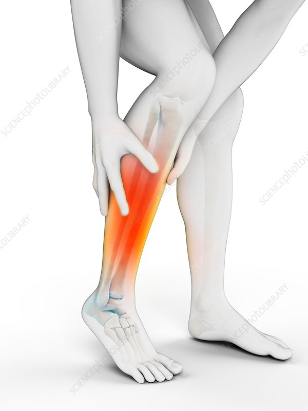 Human calf pain, illustration