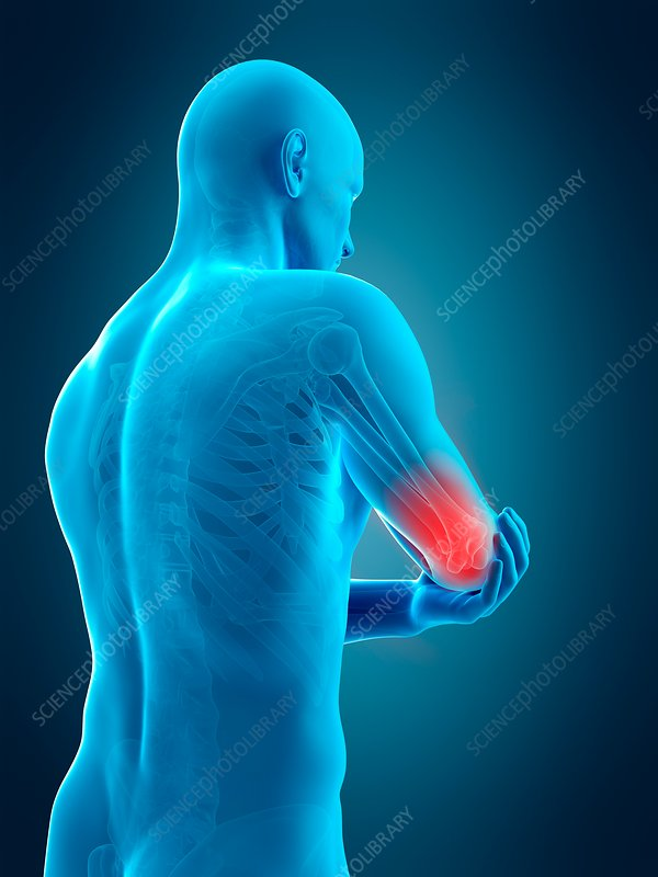 Human elbow pain, illustration