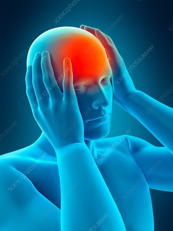 Person with headache, illustration