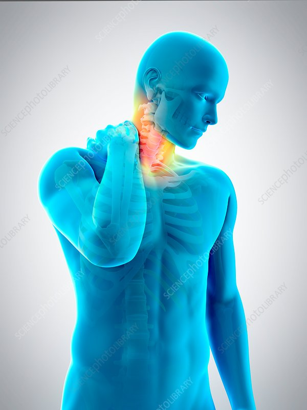 Human neck pain, illustration