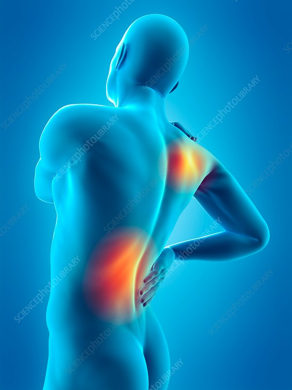 Human shoulder and waist pain, illustration