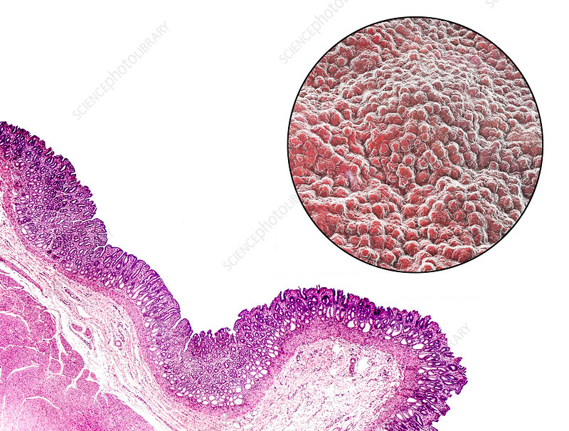 Stomach mucosa, light micrograph and illustration