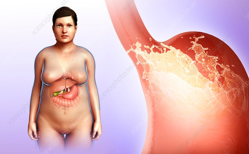 Female stomach acidity, illustration