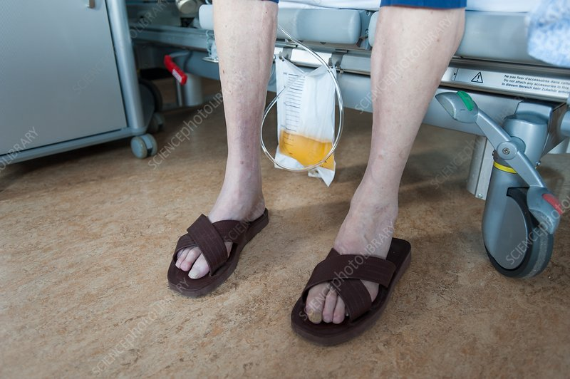 Male patient wearing sandals with urostomy bag