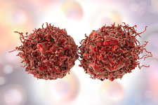 Prostate cancer cells, illustration
