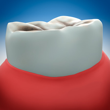 Molar tooth decay, illustration