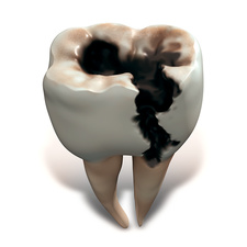 Molar tooth decay