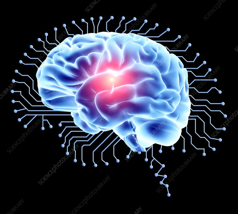 Human brain on brain-shaped circuit board