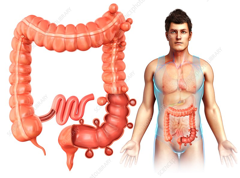 Man with diverticulosis, illustration