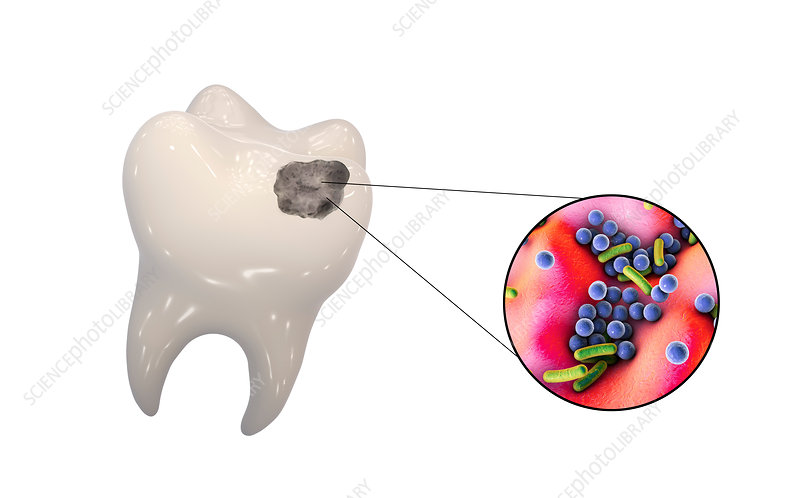 Tooth decay and bacteria, illustration