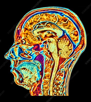 MRI scan of normal brain, illustration