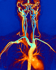 Chest, neck and head arteries, MRI scan