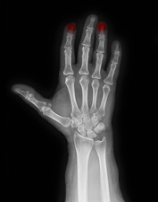 X-ray of hand with crushed index finger